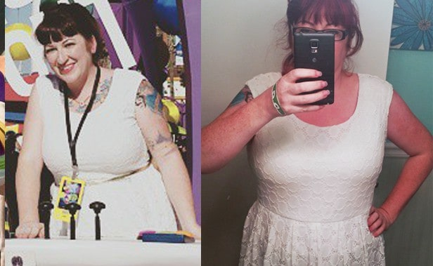 My Breast Reduction – The First Week Of Recovery