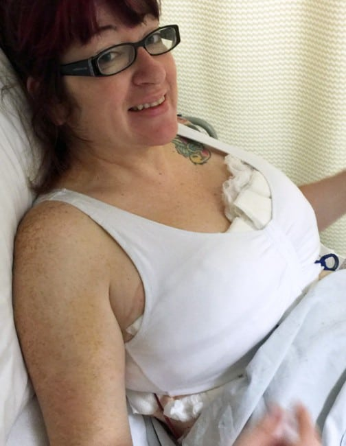 I Did It! My Breast Reduction Surgery – Day 1 & Tips To Prepare For Your Surgery Day