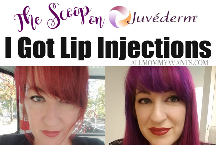 I Got Juvederm Lip Fillers – Here's The Scoop (video)