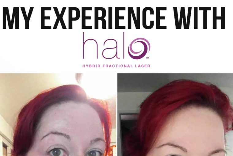 Is Halo Skin Treatment Right For You? My Experience With Dr. Bohley In Portland Oregon